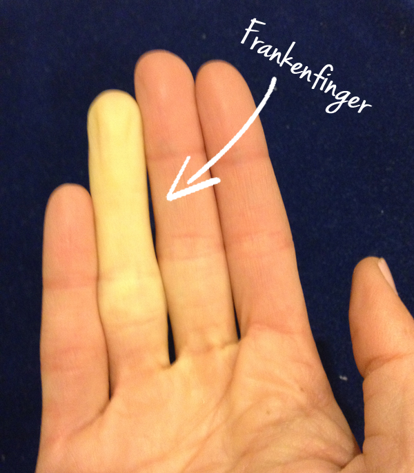 Raynaud S Syndrome